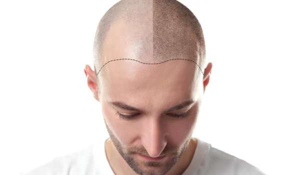 why is it better to go to turkey to have a hair transplant?